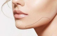 玻尿酸垫下巴效果能维持