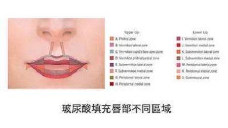 注射玻尿酸丰唇多少钱