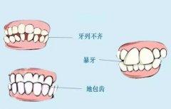上海做牙齿畸形矫正多少