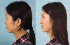 隆鼻后修复手术恢复时间会更长吗?