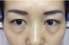 如何消除眼袋才有效?