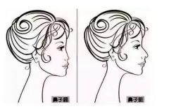 北京软骨做鼻术后能动鼻