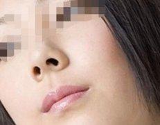 矫正鼻孔大的手术会留疤