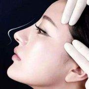 隆鼻修复术后有什么需要