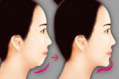 重庆做注射玻尿酸丰下巴