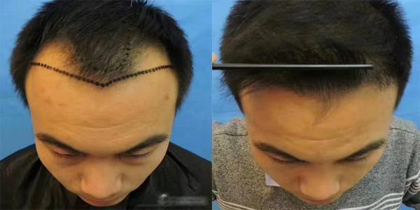 头发种植后怎么护理?