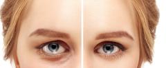 手术去眼袋要多久能恢复