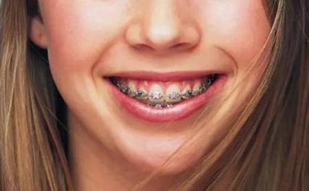 牙齿正畸的步骤你需要知