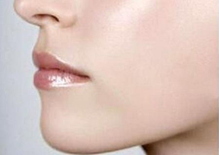 唇腭裂整形多少钱
