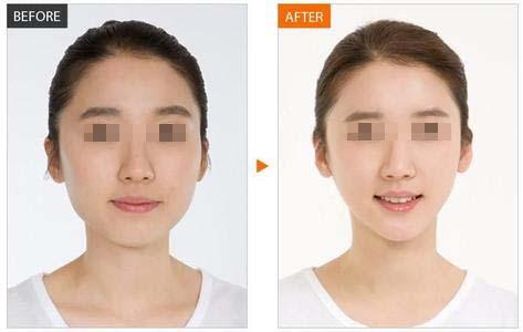 天津注射瘦脸针的效果能