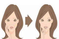 成都做面部除皱美容方法