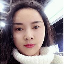 美莱头发种植案例熊秋萍