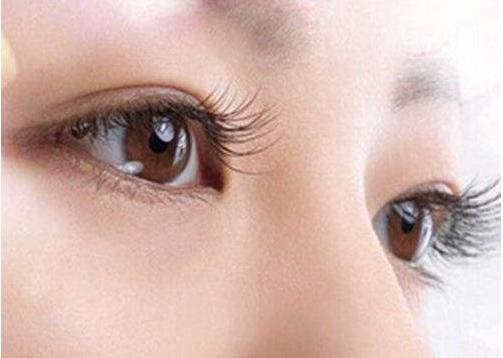 北京三点式双眼皮手术价