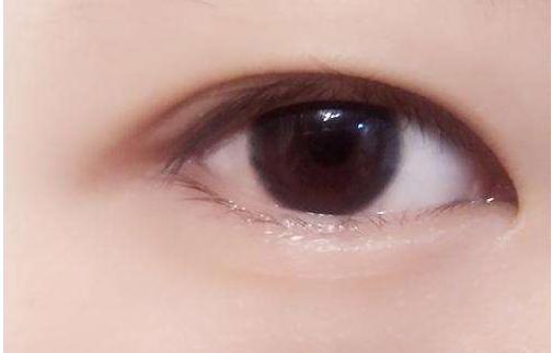 双眼皮无能为力的时候,竟是遭遇了这些问题?