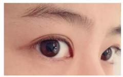 北京怎么割双眼皮会更加