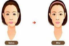 重庆做面部吸脂术后多久
