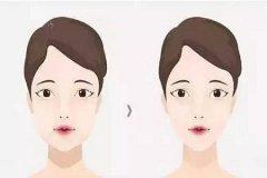 打瘦脸针对咬肌会有副作