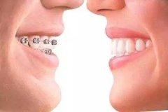 口腔整形的一般有哪些特