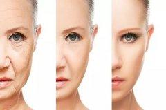 脸部除皱手术是什么