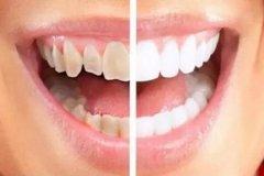 牙齿校正适合的年龄段是