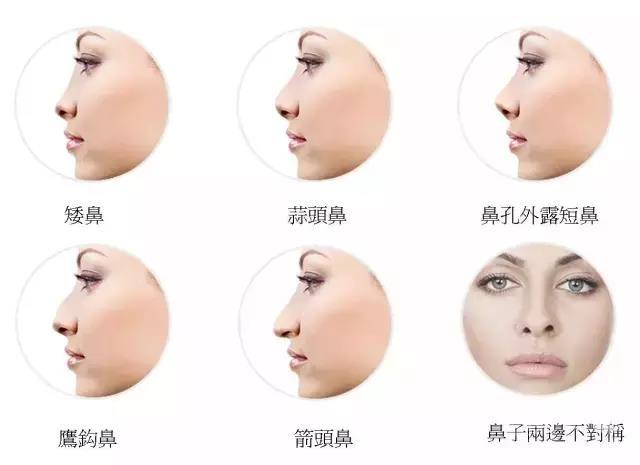 3月11-12日,达拉斯鼻整形巨匠李战强教授坐诊!