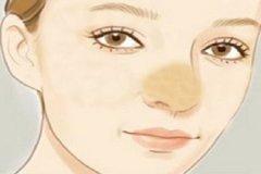 鼻综合整形有哪些优势