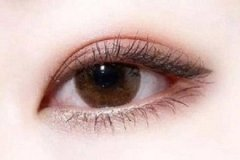 眼袋抽脂术效果怎么样