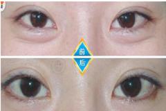 眼皮抽脂前后对比效果图