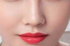 玻尿酸填充鼻唇沟多少钱