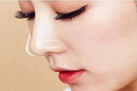 玻尿酸填充鼻唇沟