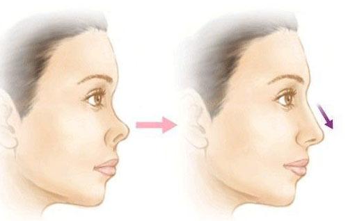 注射玻尿酸隆鼻能维持多少个月?