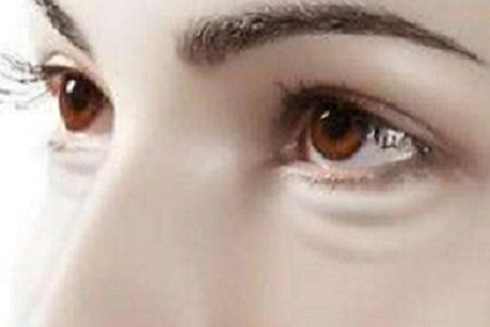 双眼皮贴能够使单眼皮变