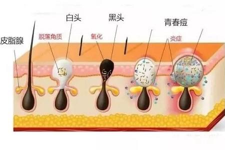 毛孔肌肤粗大怎么解决
