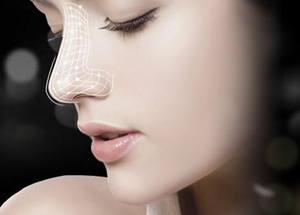 线雕隆鼻子能保持多久
