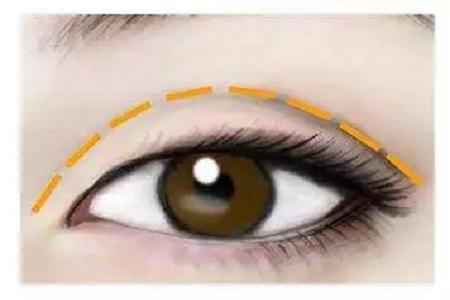 厦门割双眼皮手术优势有哪些