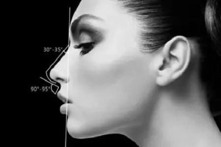 如何区别隆鼻与鼻综合手术