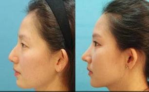 驼峰鼻矫正
