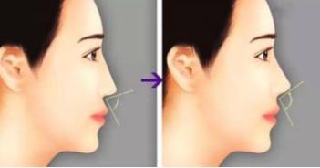 玻尿酸丰鼻基底