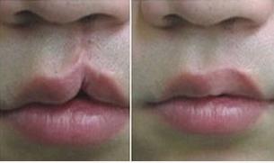 唇腭裂手术