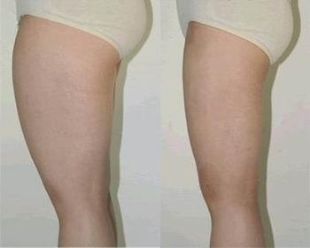 动氧瘦大腿
