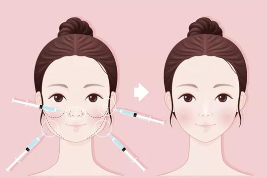 郑州美莱瘦脸针注射效果好吗?