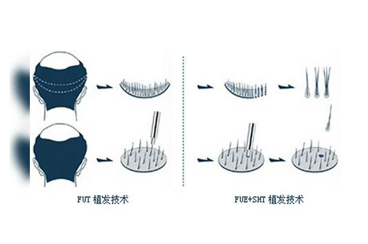 郑州美莱 植发中心 毛发种植之原理篇
