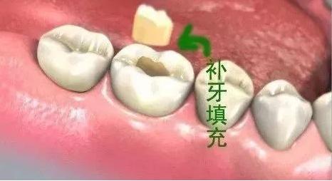 郑州美莱整形怎么治疗牙齿缺损