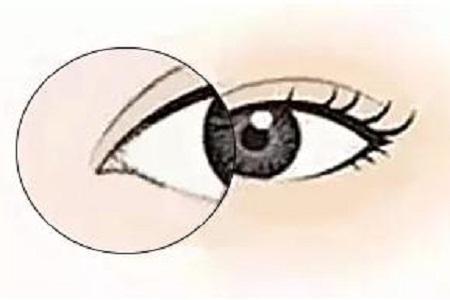 开眼角手术费用多少 媚眼勾魂!