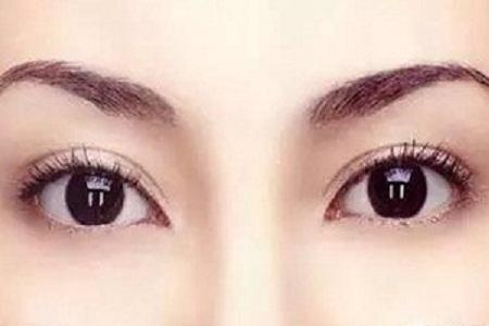 衡阳眼部抽脂价格 解决你的天生肿眼泡
