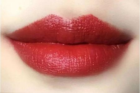西安唇部整形手术价格 娇唇红润野性美