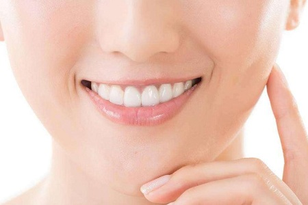 石家庄矫正牙齿费用 健康牙齿人人爱