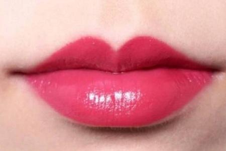 贵阳唇部整形手术有无后遗症