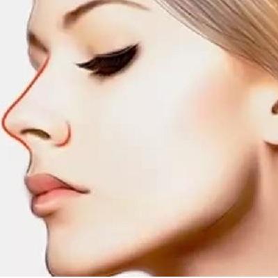 自体组织隆鼻