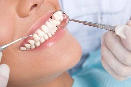 曲靖矫正牙齿费用